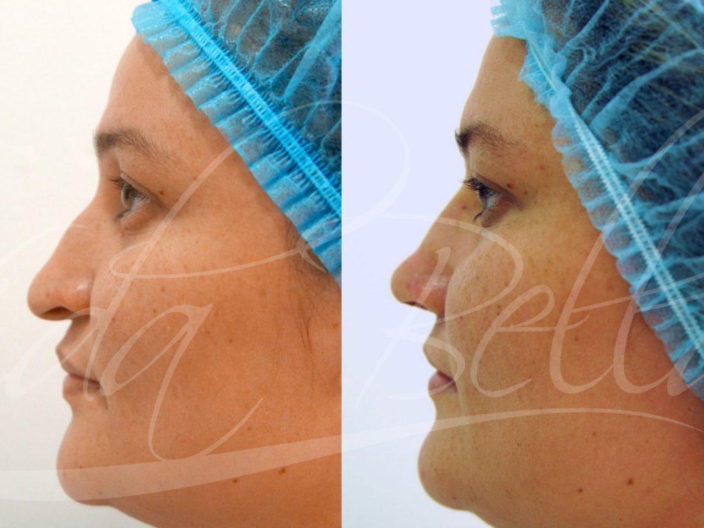 vidabella procedimientos menores elevacion punta nariz