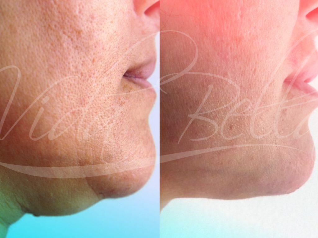 vidabella procedimientos menores lipoplastia facial