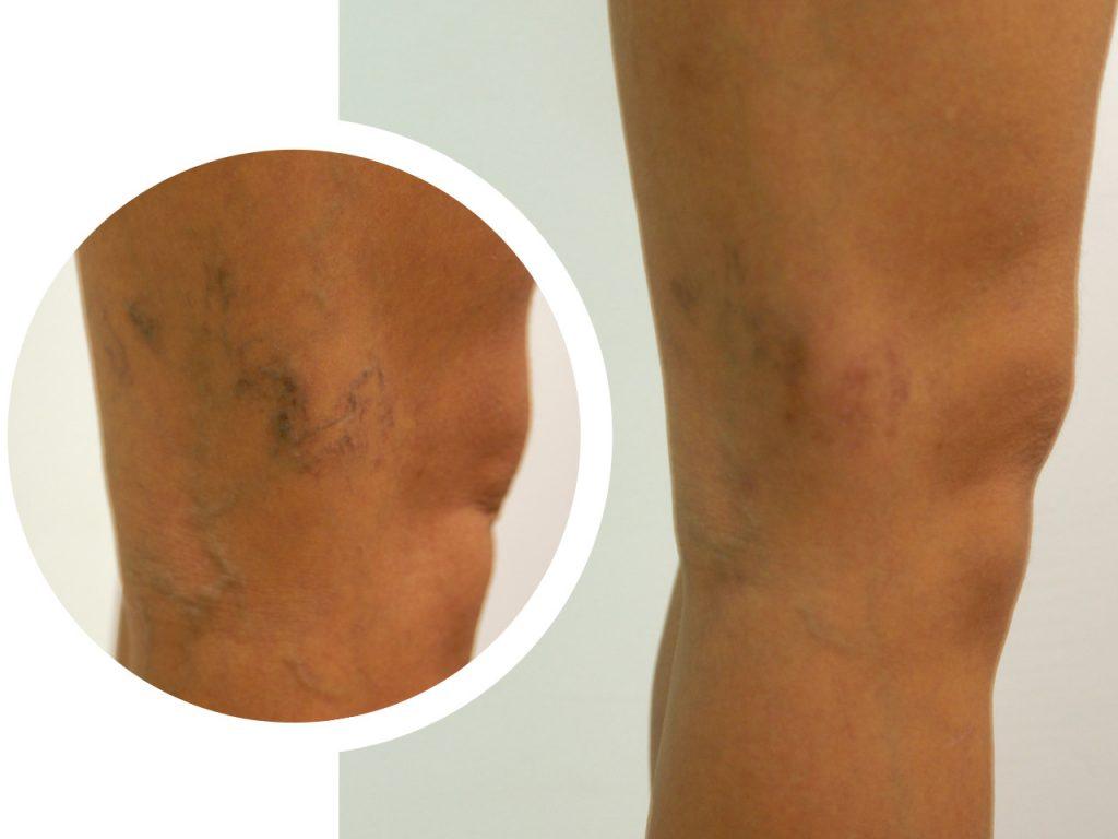 vidabella procedimientos menores micro varices