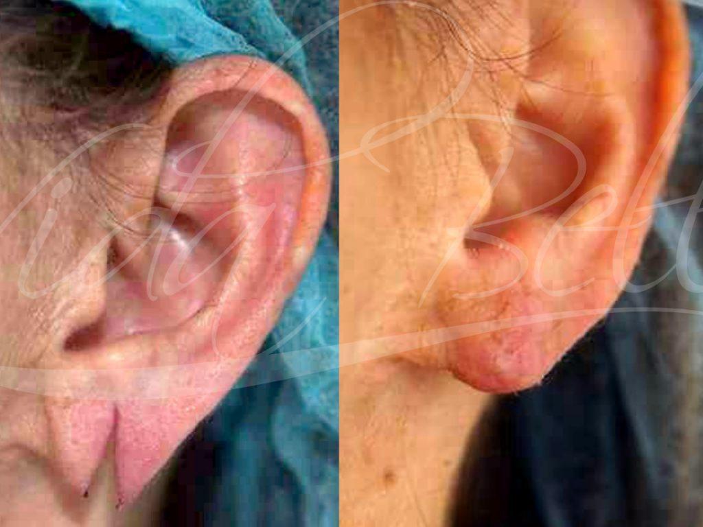 vidabella procedimientos menores oreja rasgada