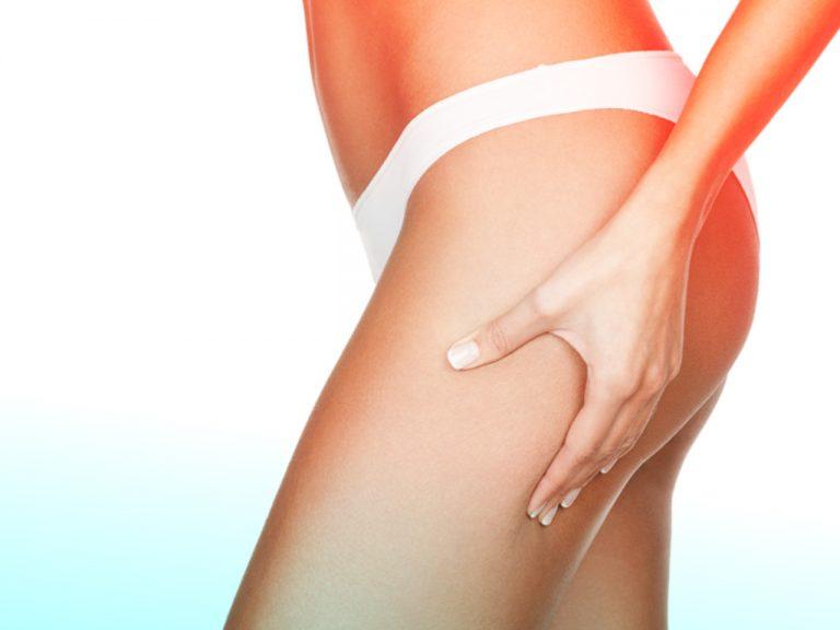vidabella procedimientos menores tratamiento celulitis